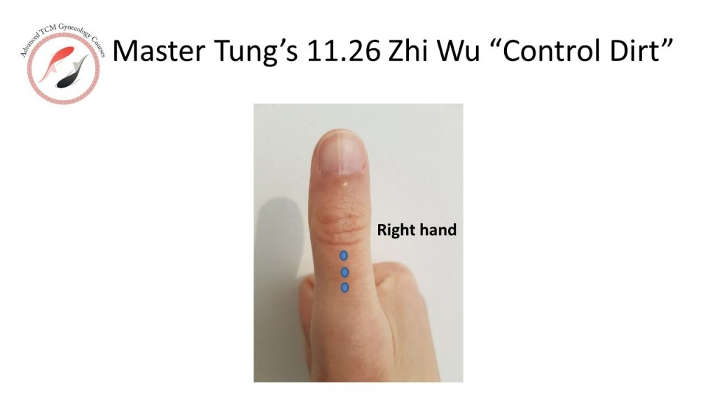 Master Tung Acupuncture 11.26- Zhi wu
