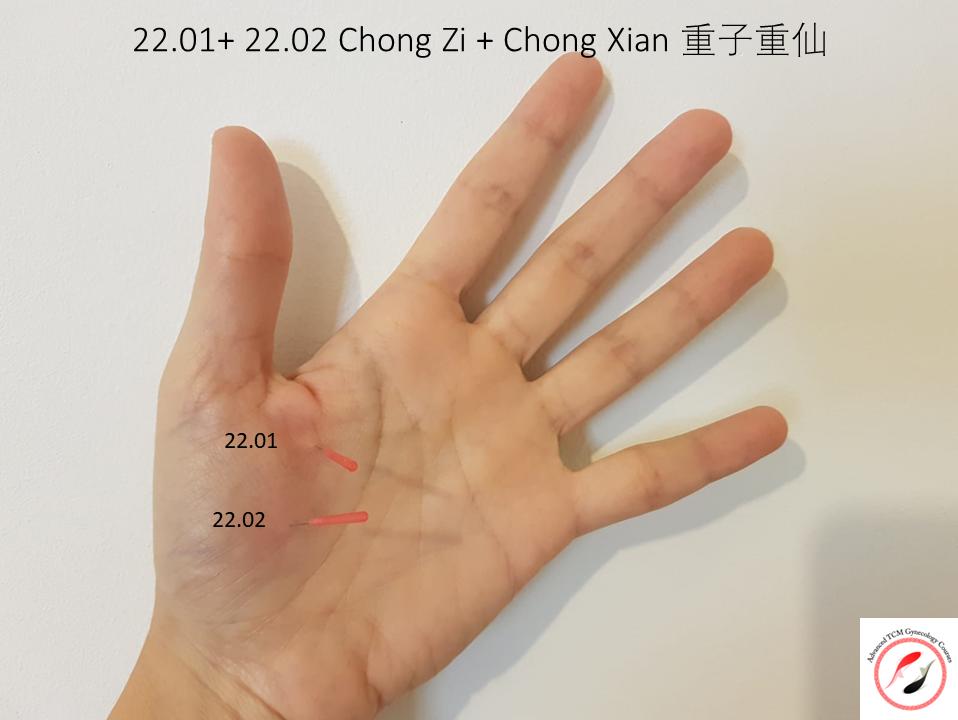 נקודות דיקור 22.01 + 22.02 של מסטר דונג Chong zi, Chong Xian