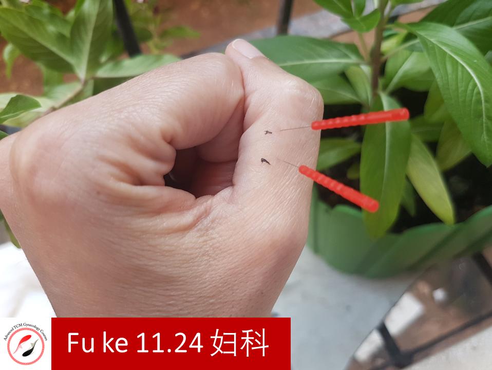 Fu ke 11.24 妇科 נקודת דיקור של מסטר דונג